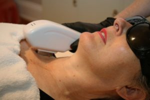 5 Reasons Why Clients Choose Cinergee for Hair Removal