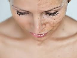 What Causes Skin Conditions?